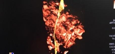 Rotator mg 9717