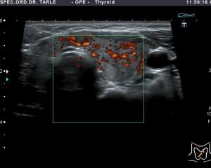 Ultrazvuk štitnjače-Hašimotov tiroiditis