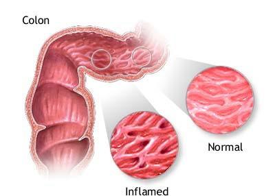 Znakovi upale crijevne stijenke