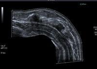 Ultrazvuk dojki- rak dojke