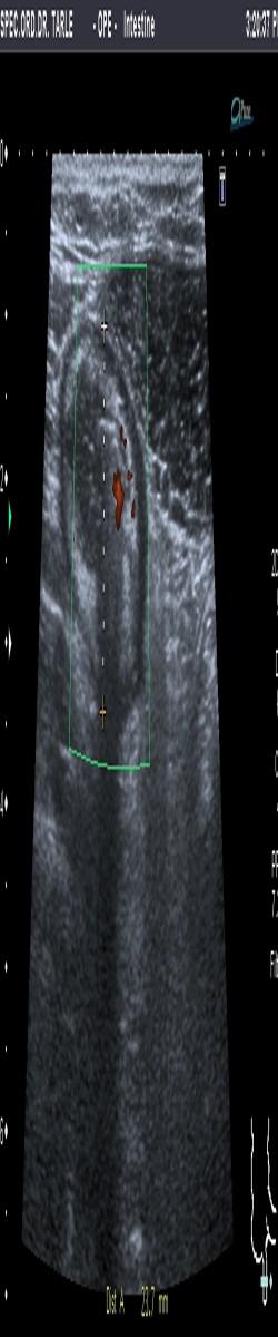 Ultrazvuk trbuha-ultrazvuk upale slijepog crijeva