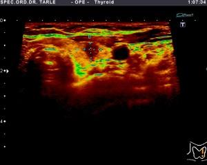 Ultrazvuk štitnjače-rak štitnjače