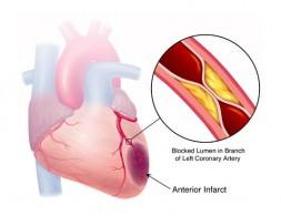 Shematizirani prikaz, suženja koronarne, srčane arterije