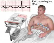 Snimanje EKG-a