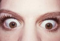 Egzoftalmus, izbočene očne jabučice