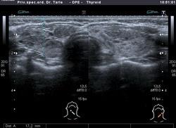 Hašimotov tiroiditis