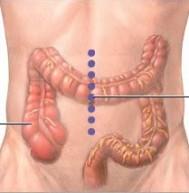 Incizija crijeva
