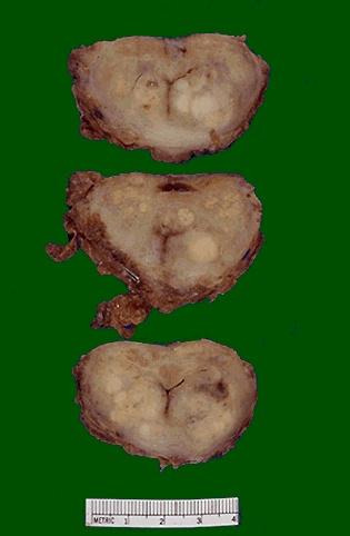 karcinom prostate