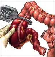 Odstranjenje upalom zahvaćenog crijeva