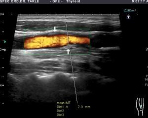 Ultrazvuk karotida
