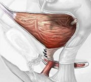 Podizanje mokraćnog mjehura, operacija