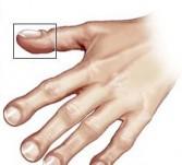 Batičasti prsti kod Chronove bolesti
