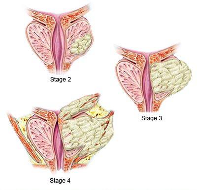 Stadiji raka prostate