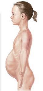 Toksični megakolon, rastezanje crijeva i trbušne stijenke