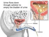 Urinarni kateter, muškarci