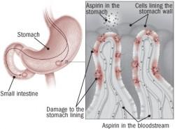 Probavni trak i aspirin