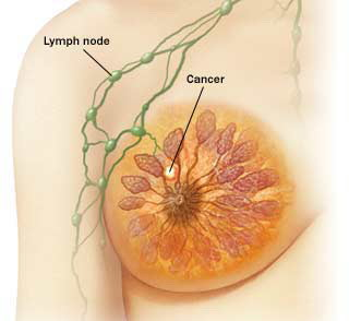 Rak dojke stadij I