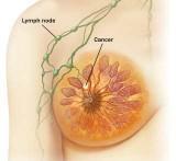 Prvi stadij raka dojke