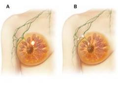 Rak dojke  stadij II