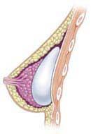 Implantat u dojci