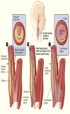 Shematizirani prikaz suženja arterije