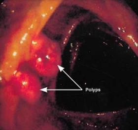 Polipi u debelom crijevu