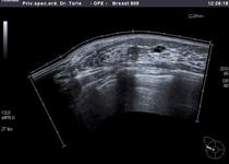 Slika iste bolesnice prikazana panoramskom slikom