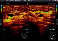 Slika prikazuje cistu u dojci jer u njoj nema krvnog protoka