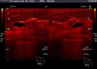 Na slici je vidljivo nekoliko cisti u dojci prikazanih u posebnom programu bojenja slike