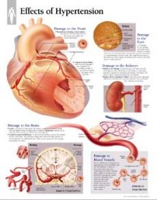 Komplikacije krvnog tlaka