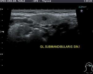 Ultrazvuk žlijezde slinovnice-tumor žlijezde slinovnice