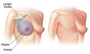 Slika radikalne mastektomije (operativnog odstranjenja dojke)