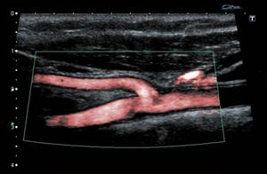 Toshiba Aplio XG - bojanje slike - ultrazvuk
