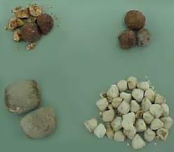 Žučni kamenci i pijesak